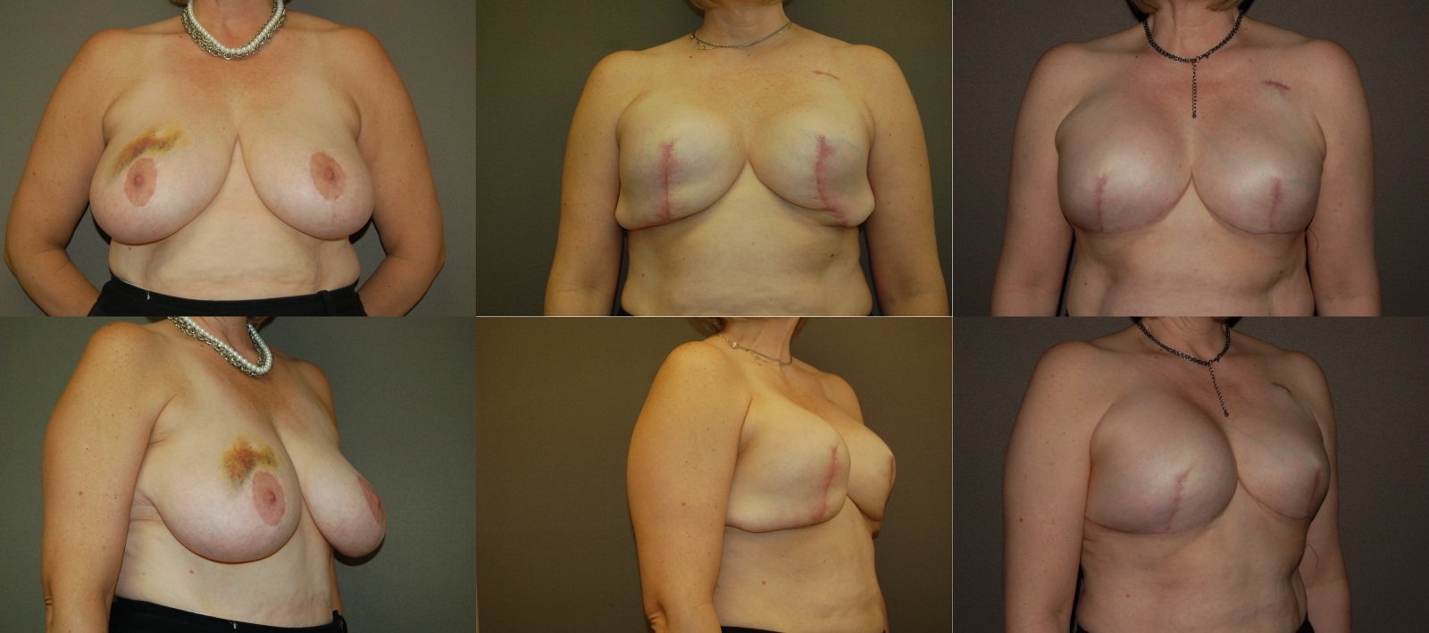 Louisville ky boob implants — photo 4