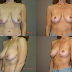 UPPER BODY - Mastopexy (Breast Lift)