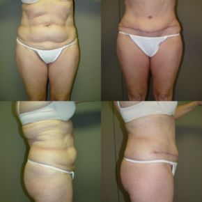 LOWER BODY - Abdominoplasty (Full Tummy Tuck)