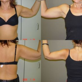 UPPER BODY - Brachioplasty (Upper Arm Reduction)
