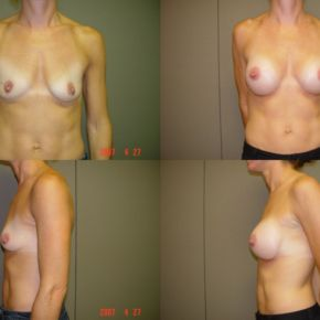 UPPER BODY - Breast Augmentation (Implants)