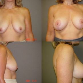 UPPER BODY - Masto-Aug (Breast Lift with Implants)