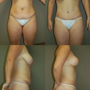LOWER BODY - Abdominoplasty ( Full Tummy Tuck)