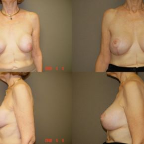 UPPER BODY - Capsulectomy (Implant Exchange)