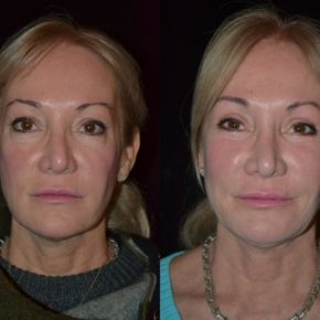 FACE - Blepharoplasty (Eyelid Surgery)