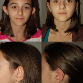 FACE - Otoplasty (Ear Surgery)