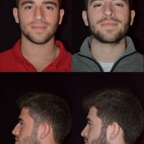 FACE - Rhinoplasty Septoplasty (Nose Surgery)