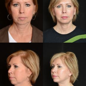 FACE - Facial Augmentation (Implants) Chin