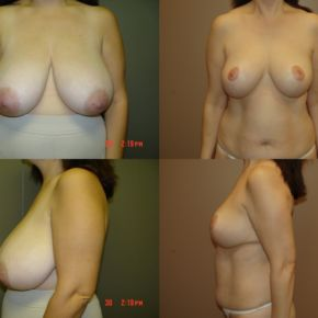 UPPER BODY - Reduction Mammaplasty (Breast Reduction)