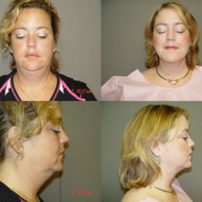 FACE - Suction Assisted Lipectomy (Liposuction)