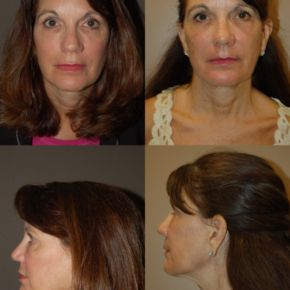 FACE - Deep Dermabrasion (Laser Resurfacing)