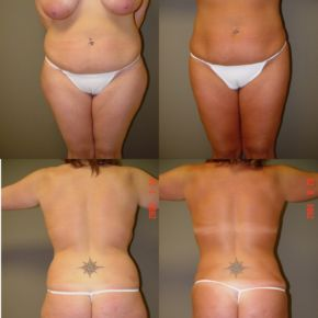 Suction Assisted Lipectomy (Liposuction)