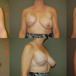 BREAST RECONSTRUCTION - Expanders & Implants