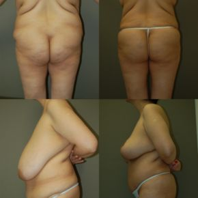 LOWER BODY - Autologus Fat Transfer (Fat Grafting)