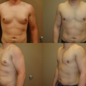 UPPER BODY - Gynecomastia (Male Breast Reduction)