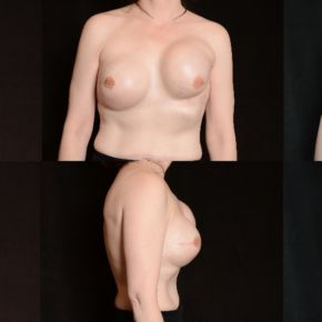 BREAST RECONSTRUCTION - Nipple Areola Skin Sparring