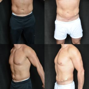 LOWER BODY - Mini-Abdominoplasty (Lower Tummy Tuck)