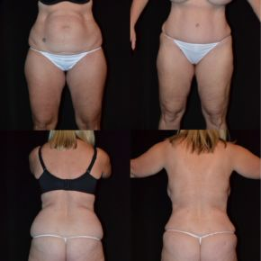LOWER BODY - Suction Assisted Lipectomy (Liposuction)