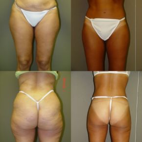 LOWER BODY - Thigh Lift Reduction